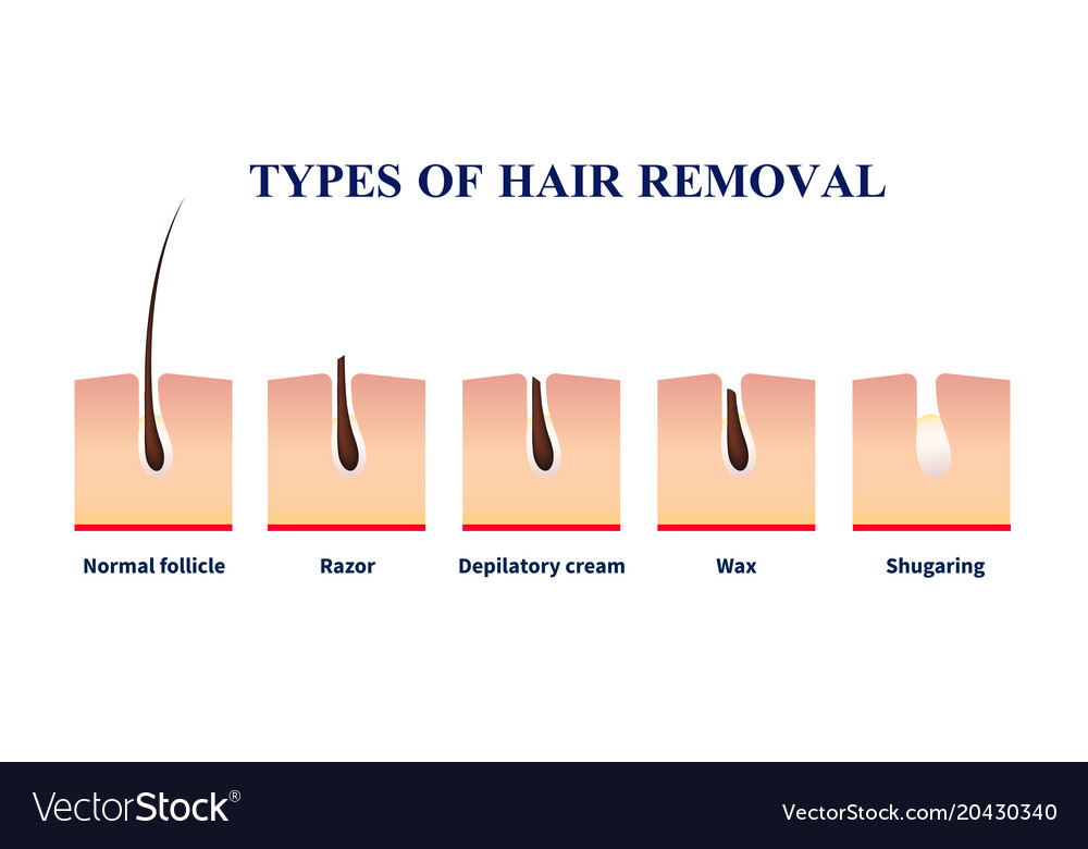 Types of hair removal Royalty Free Vector ImageVectorStock