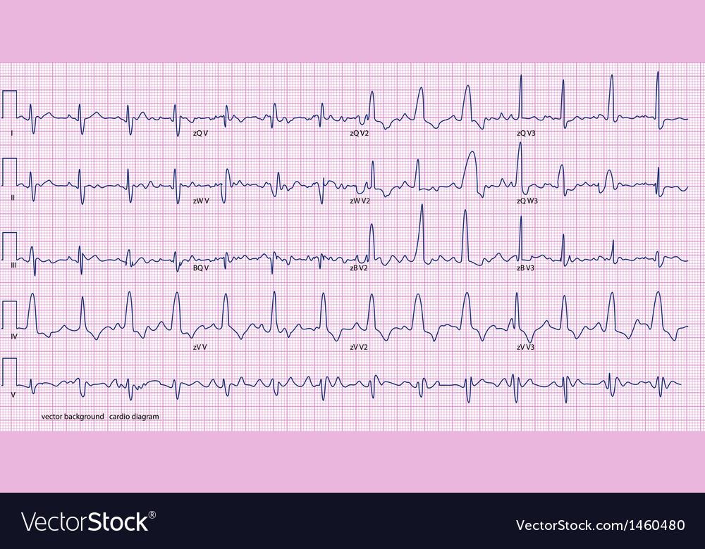 Cardio diagram