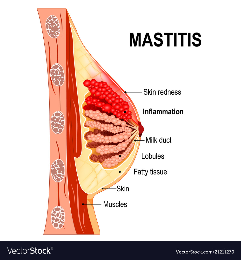 Mastitis cross-section of the mammary gland with
