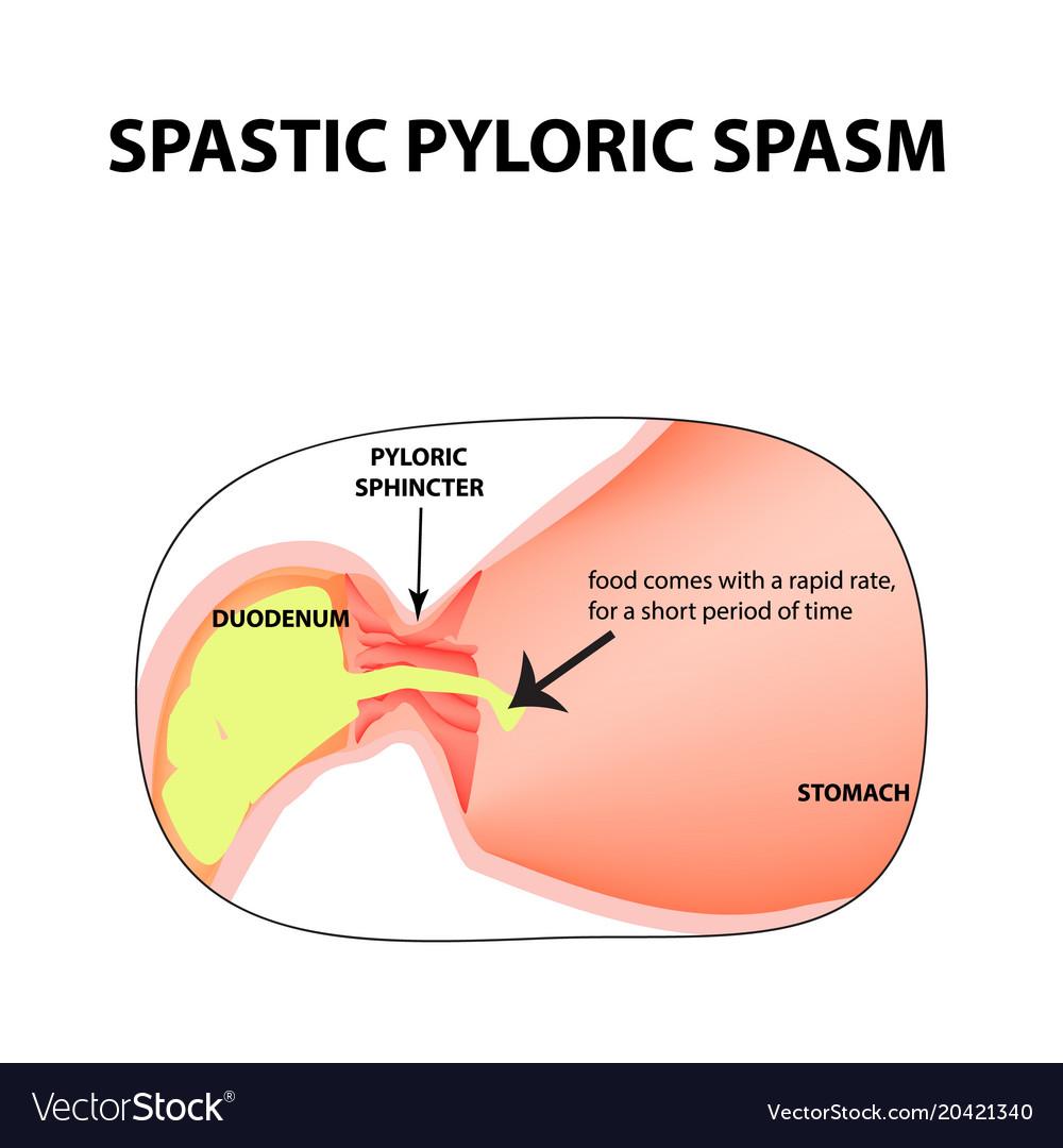 Spasms of the pylorus pylorospasm spastic Vector Image