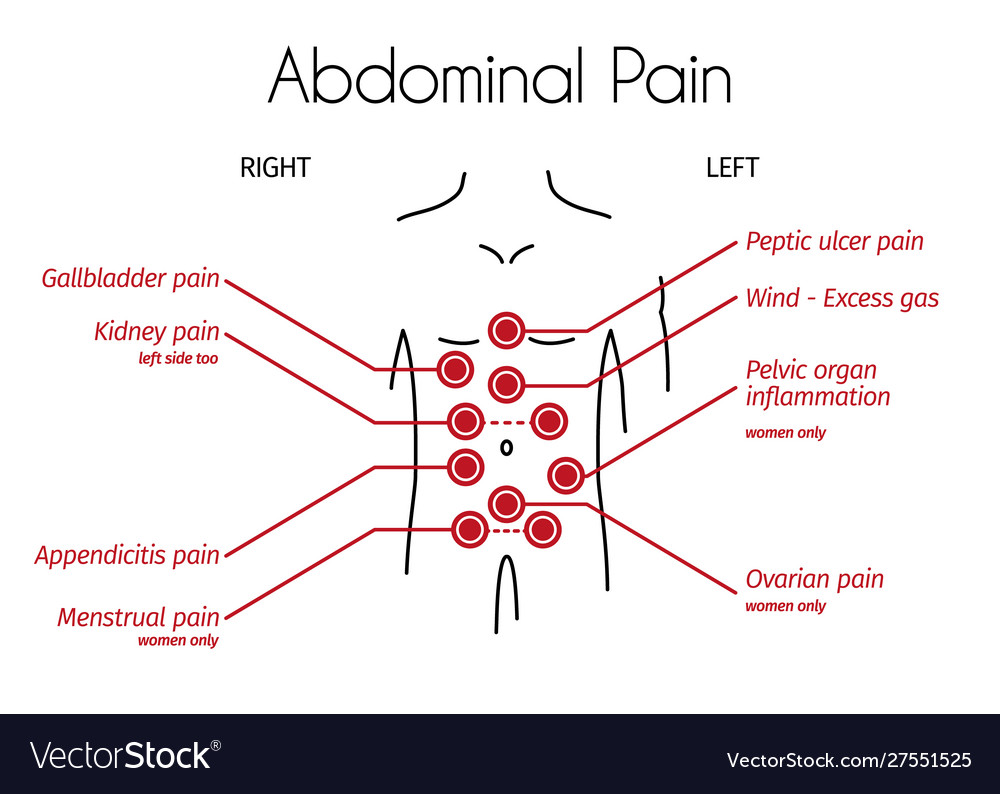 Infographic Abdominal Pain Types Royalty Free Vector Image