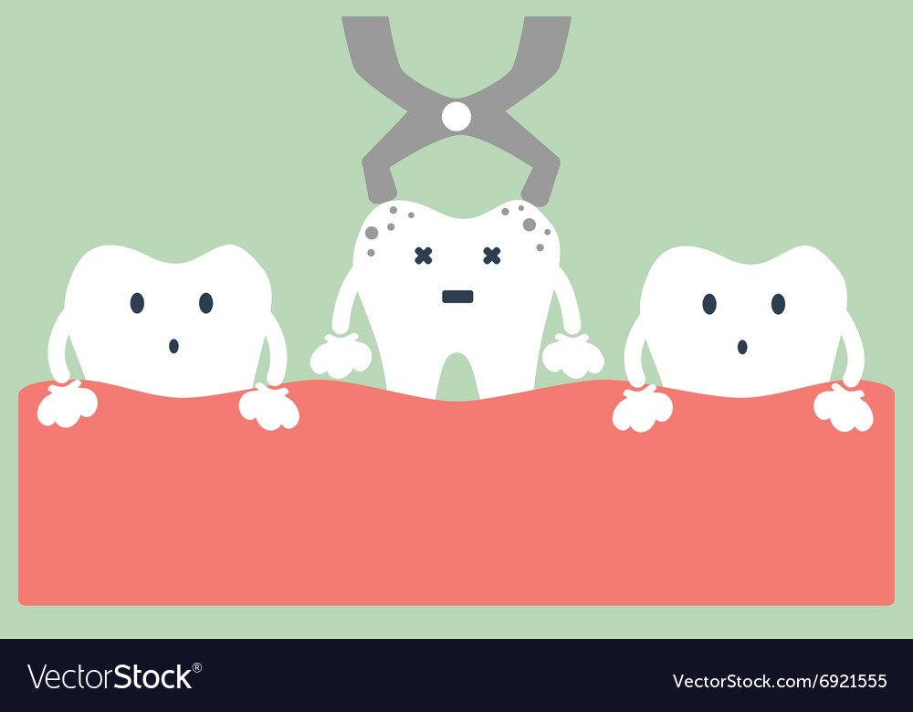 Tooth Extraction By Dental Tools Royalty Free Vector Image