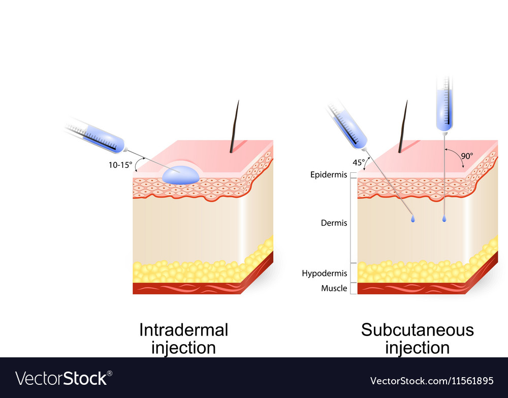 Intradermal and Subcutaneous injection