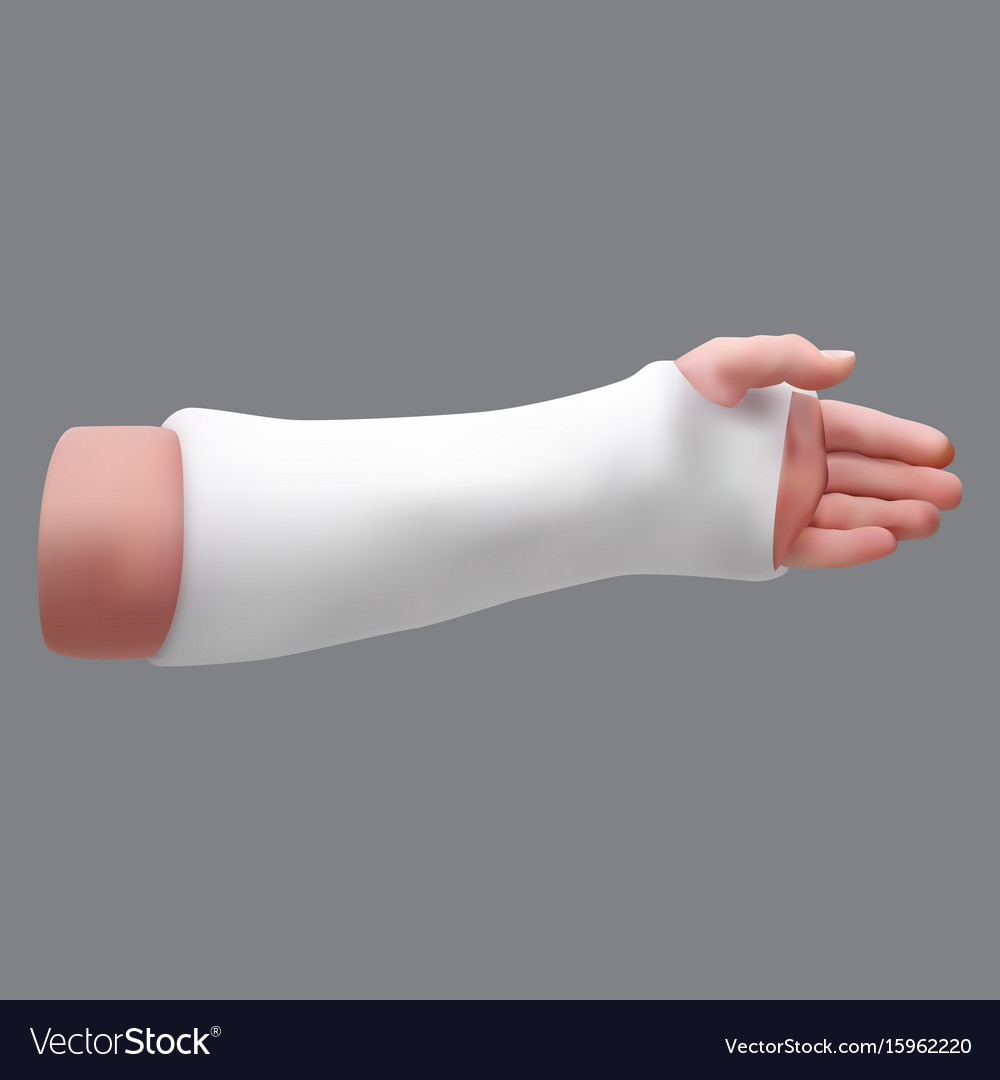 Gypsized broken arm isolated realistic object