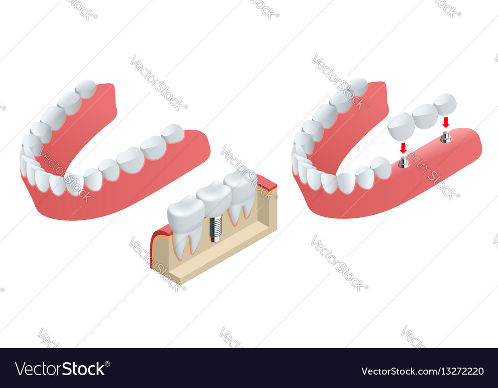 Isometric tooth human implant dental concept