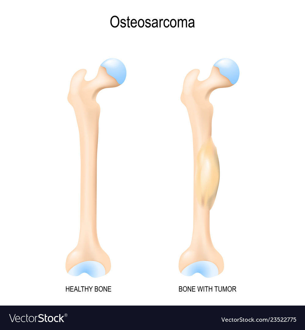 Femur Bone Structure Skeleton Vector Images 64