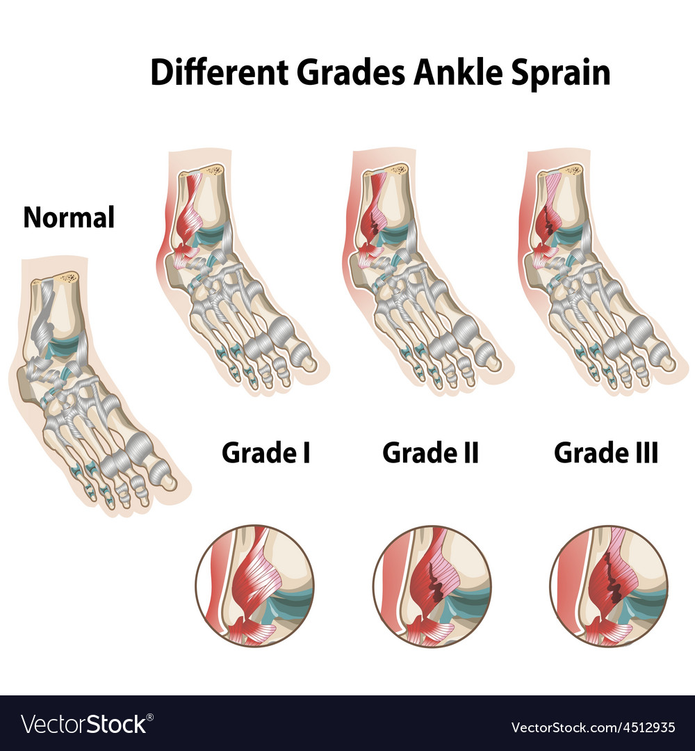 Different grades of ankle sprains