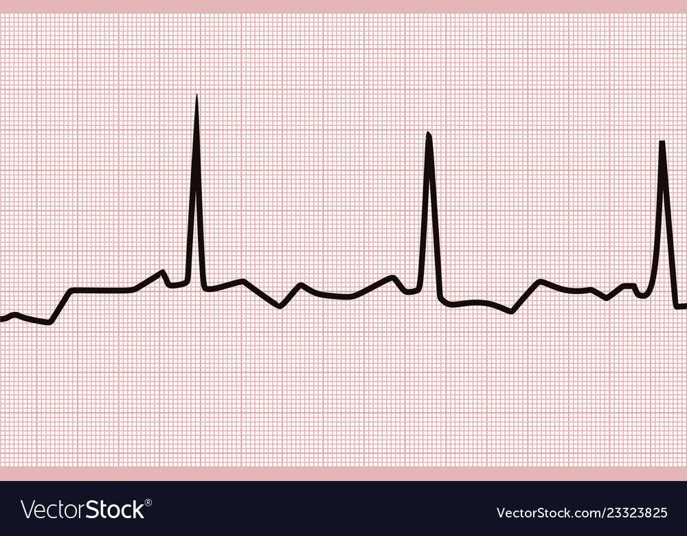 Heart line graph
