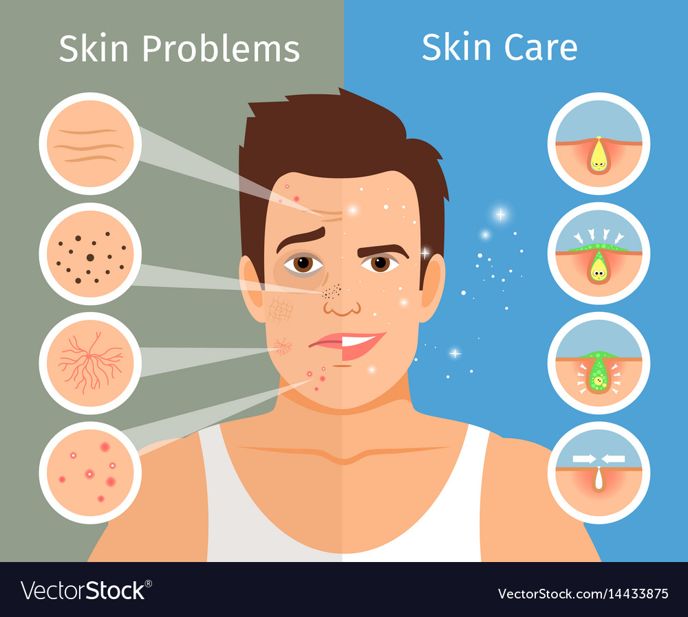 Male Face Skin Treatment Royalty Free Vector Image