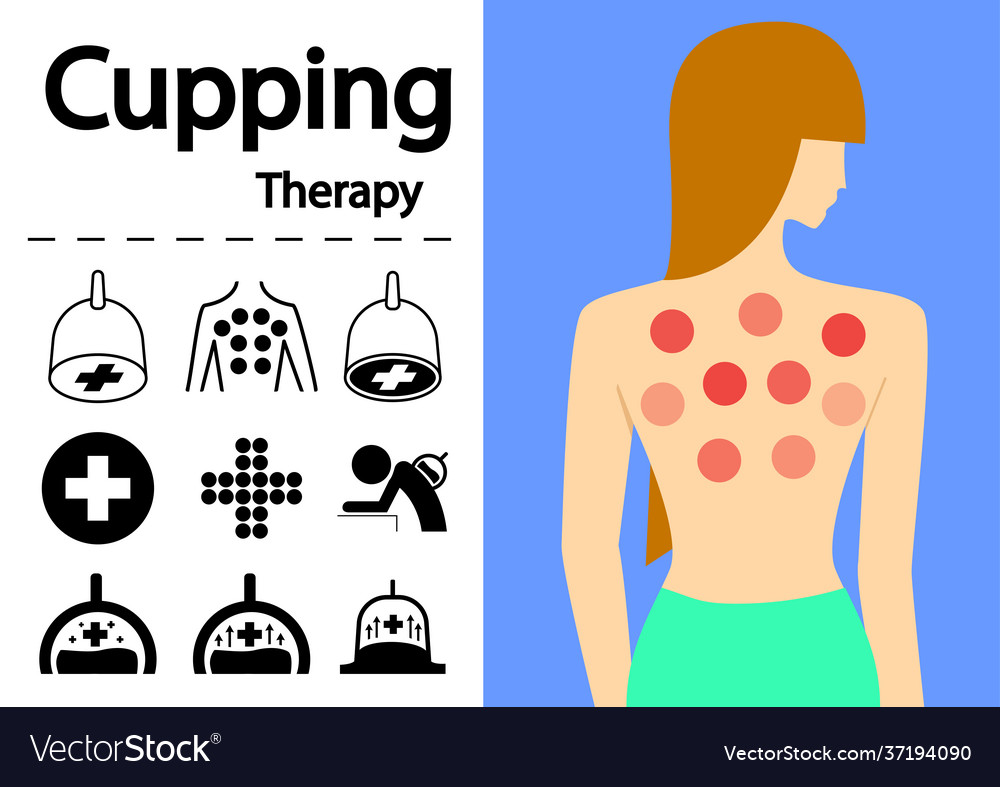 Hijama or cupping therapy icons in flat art