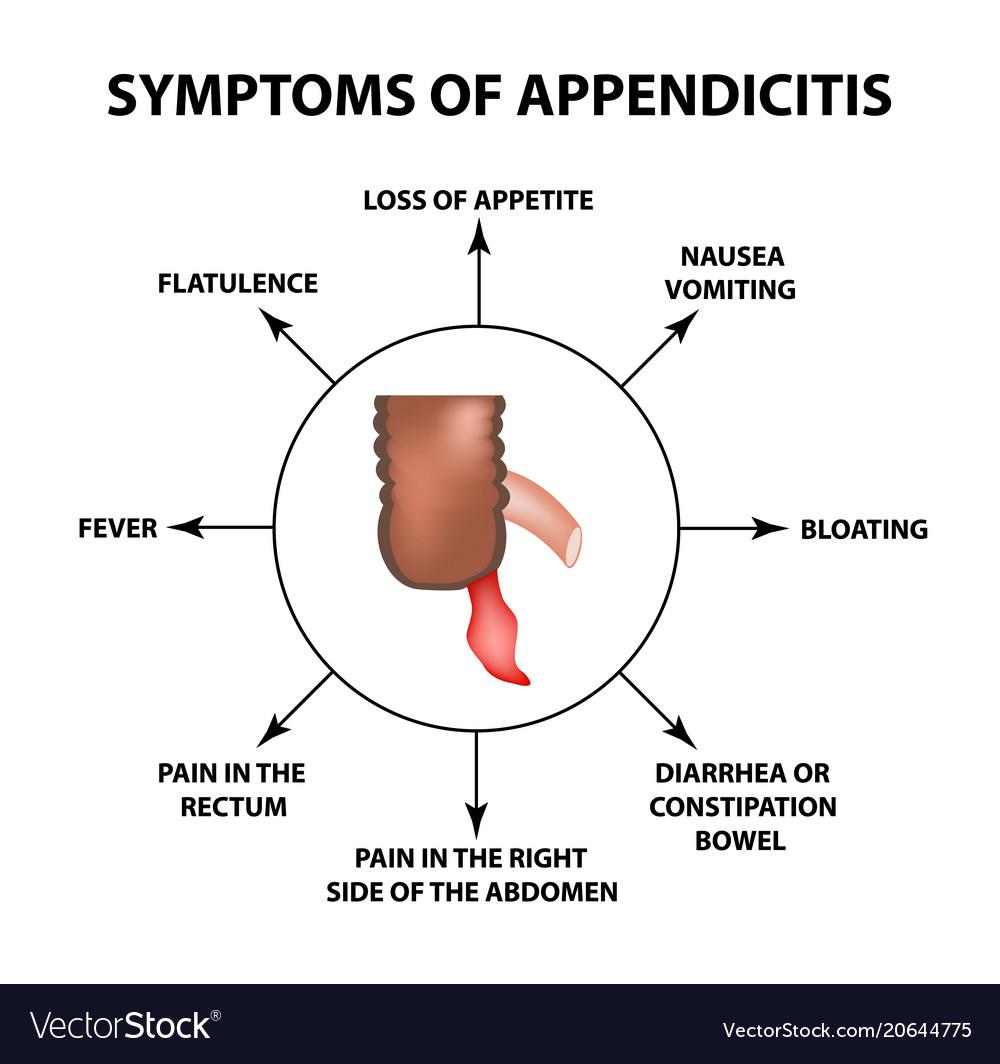 Symptoms Of Appendicitis Inflammation Appendix Vector Image