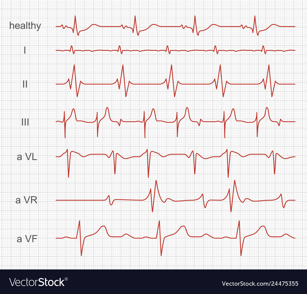 Cardiogram heart red rhythm on monitor screen