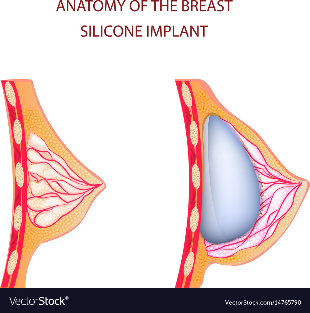 Anatomy of breast silicone implant Royalty Free Vector Image