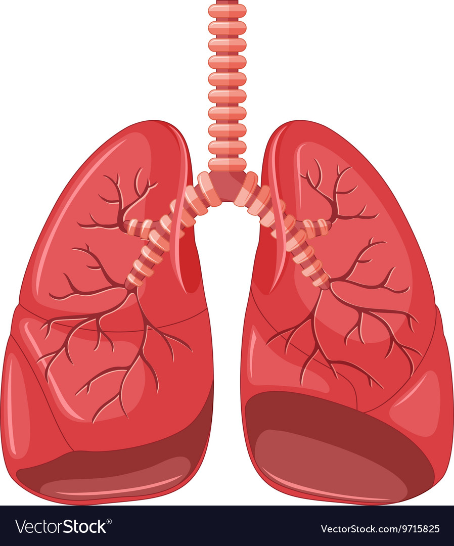 Lung Diagram Of Pneumonia Royalty Free Vector Image