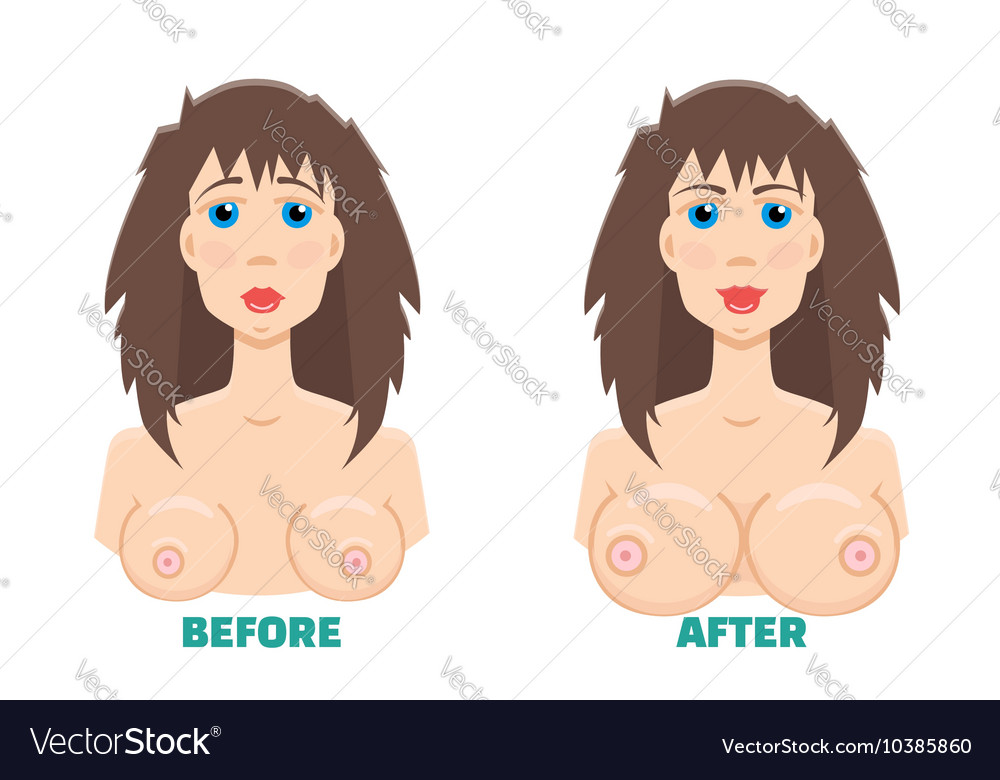 Breast augmentation before and after concept