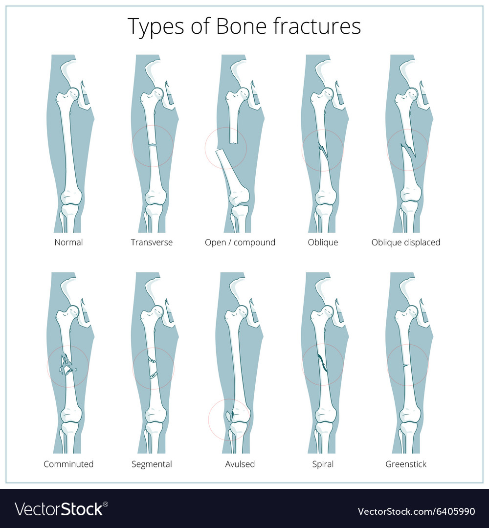 Types of bone fractures medical educational Vector Image