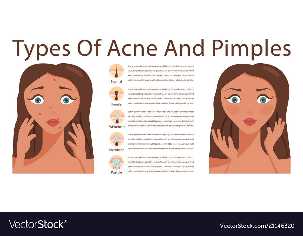 Skin acne problems