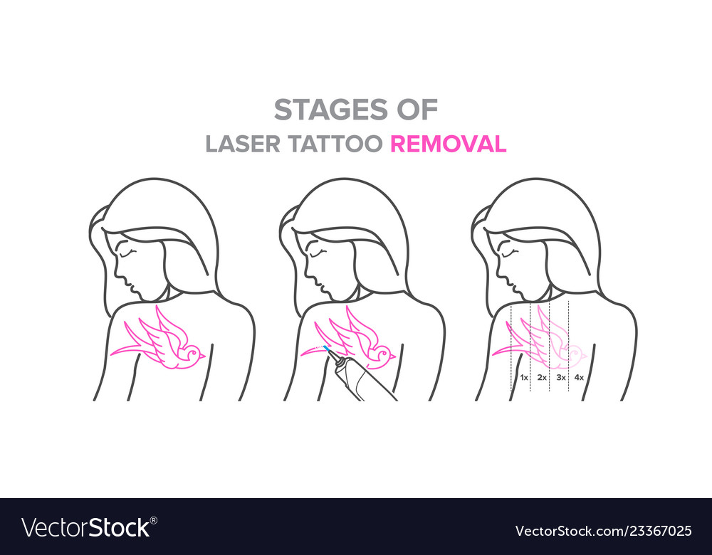 Stages Of Laser Tattoo Removal Royalty Free Vector Image