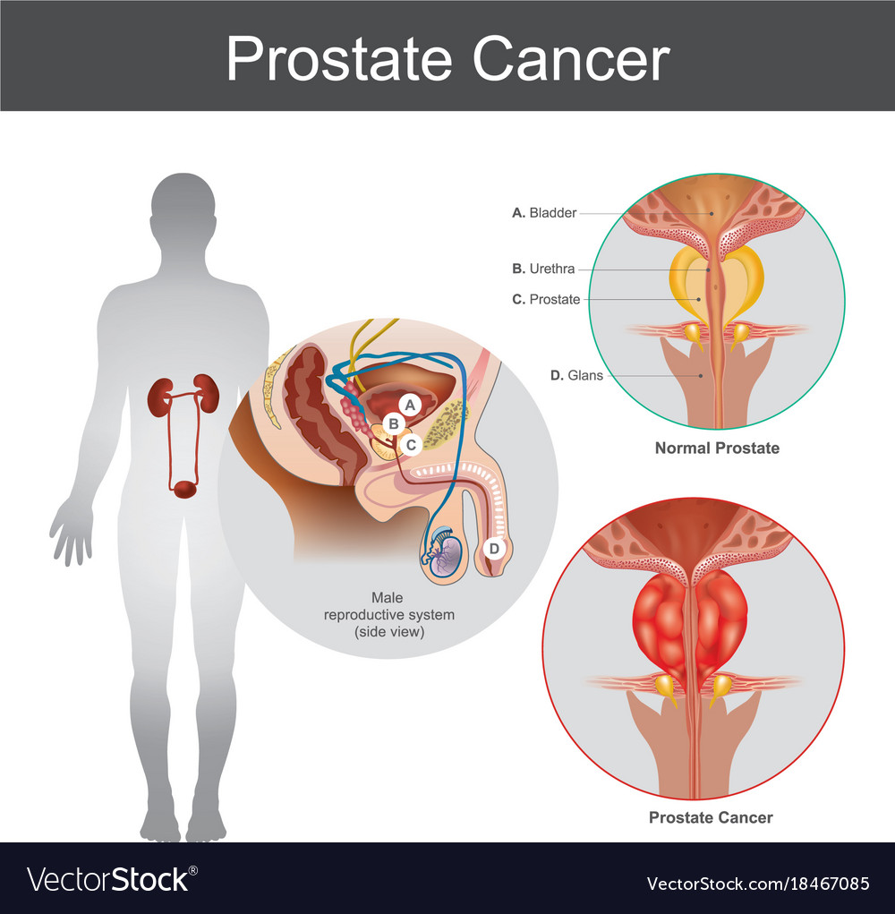 Prostate cancer anatomy body part Royalty Free Vector Image