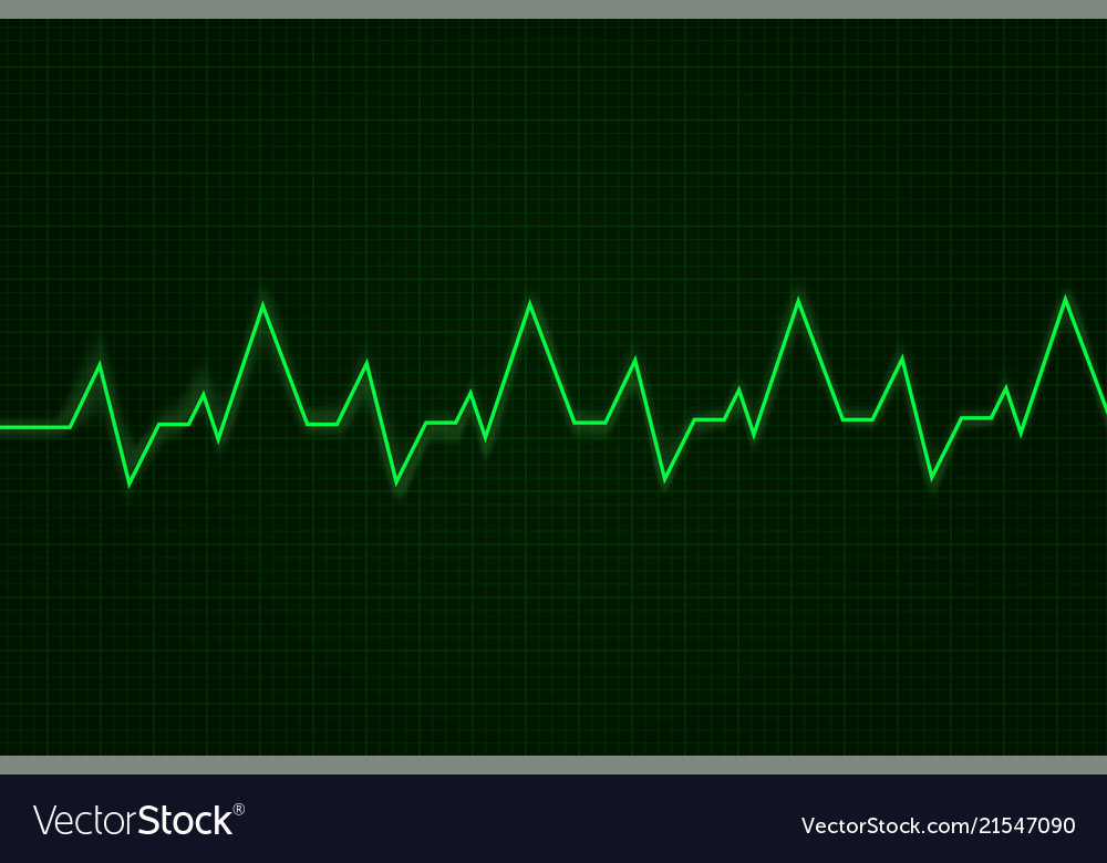 Heartbeat cardiogram graph green line on display