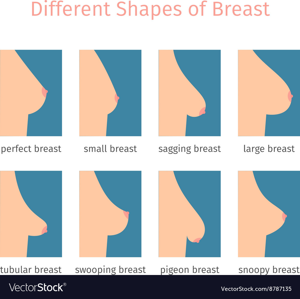 Normal Breasts Gallery, part C - Female breasts