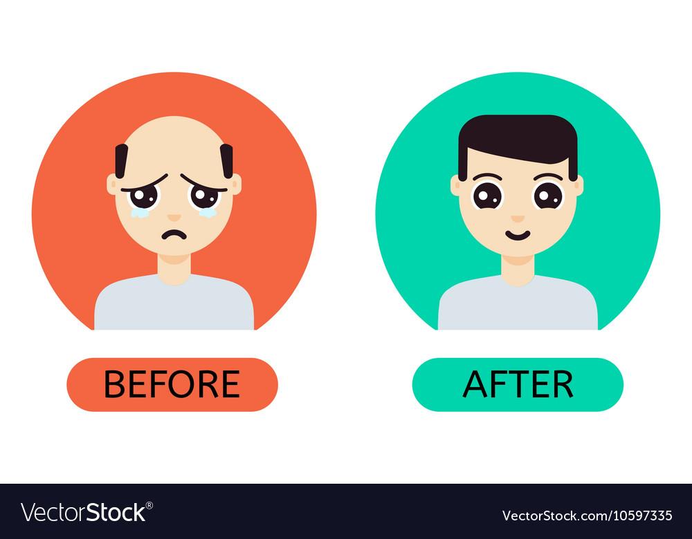 Cartoon man before and after hair transplantation vector image