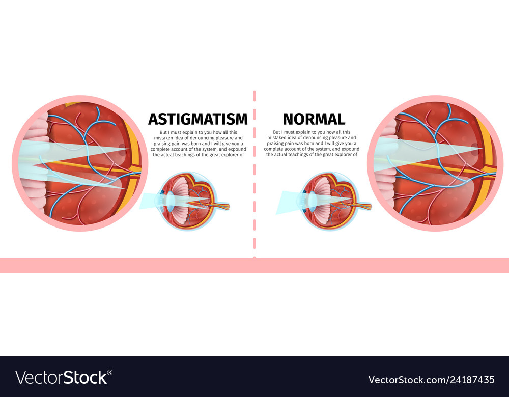 Banners set with normal and astigmatism human eye