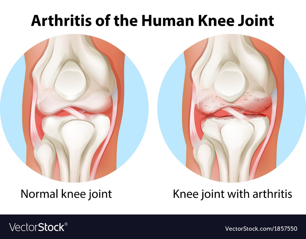Arthritis of the human knee joint royalty free vector image arthritis of the human knee joint vector image ccuart Gallery