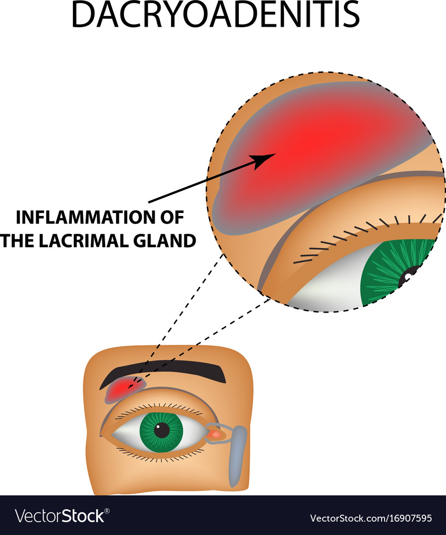 Dacryoadenitis inflammation of the lacrimal gland Vector Image