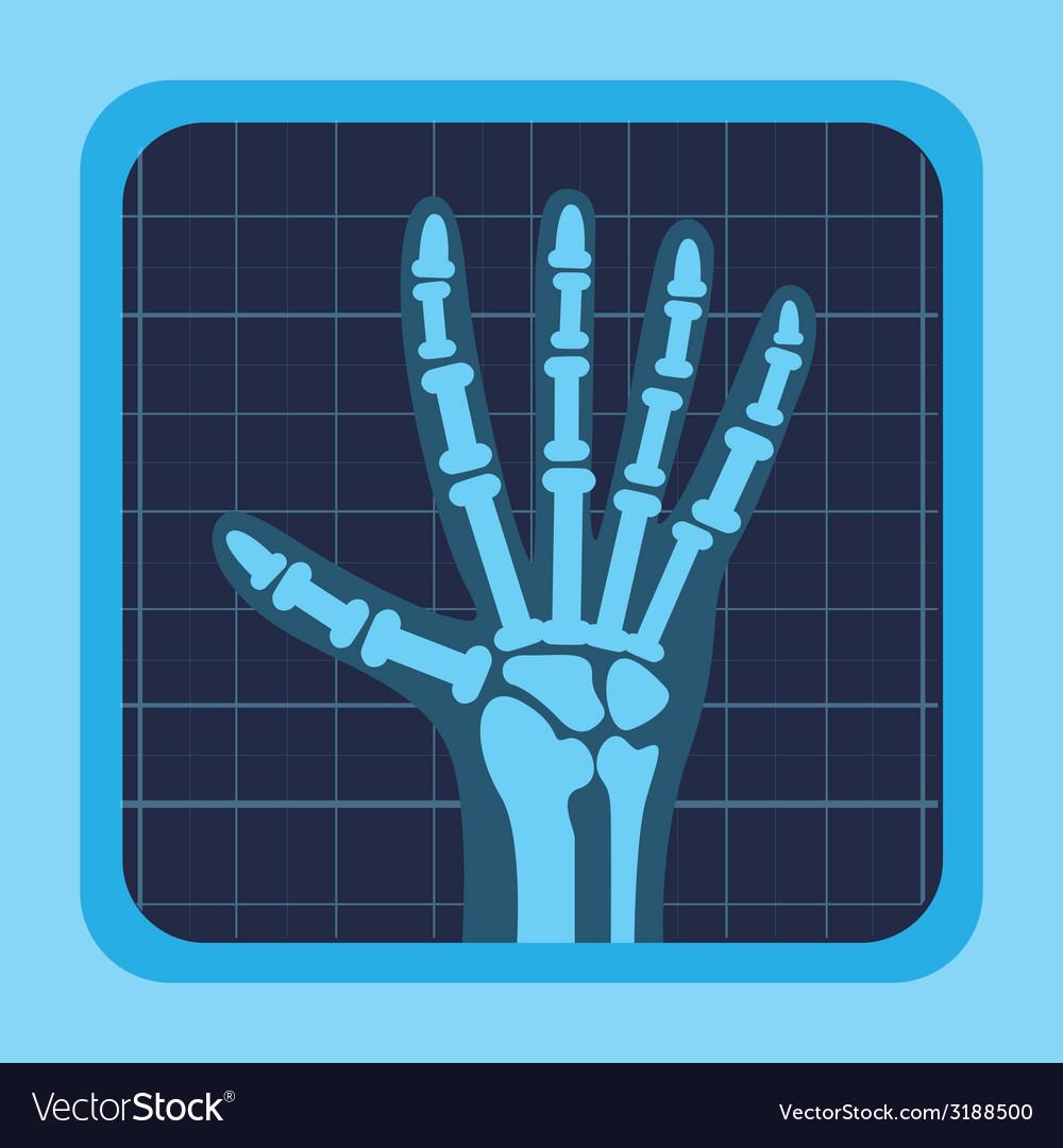 Картинка рентгена для детей