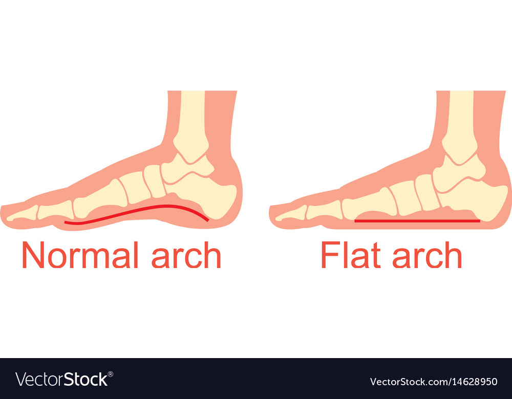 Human anatomy flat and normal arch Royalty Free Vector Image
