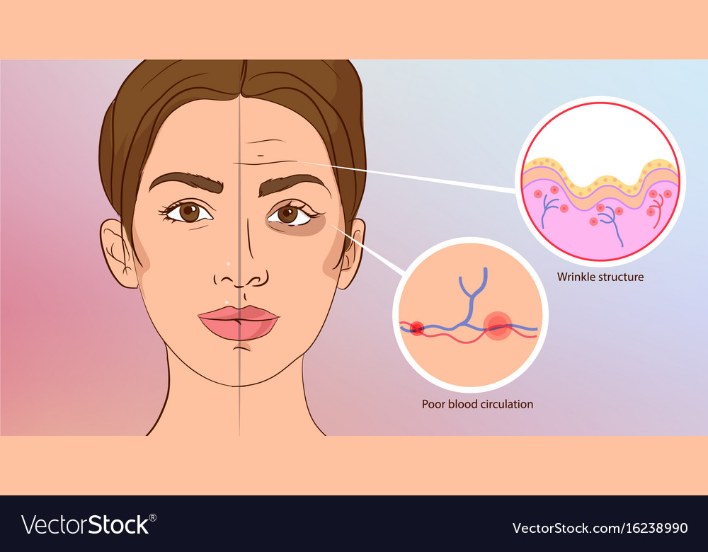 Premature wrinkles cosmetology aging of the skin vector image
