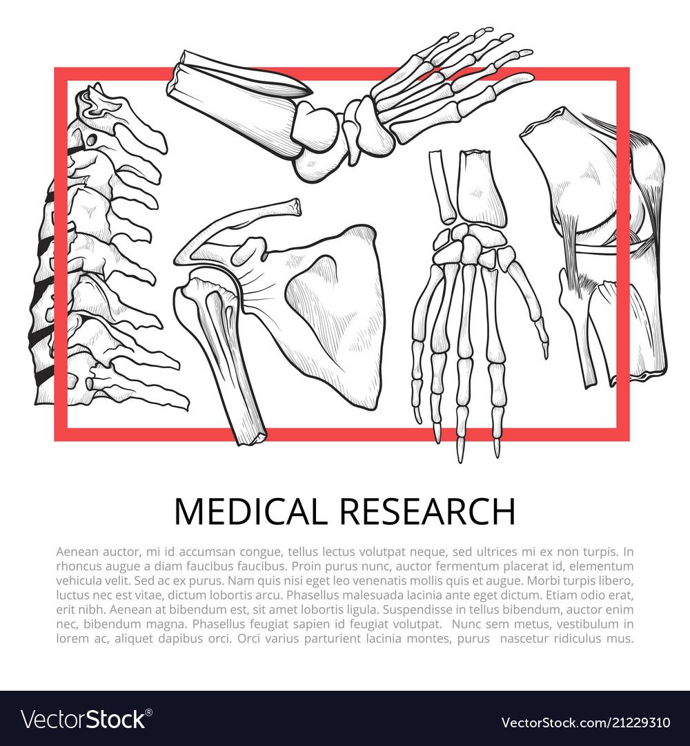 Medical bone banner