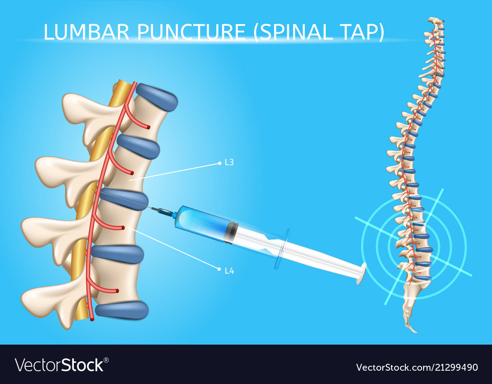 Lumbar puncture realistic medical scheme Vector Image