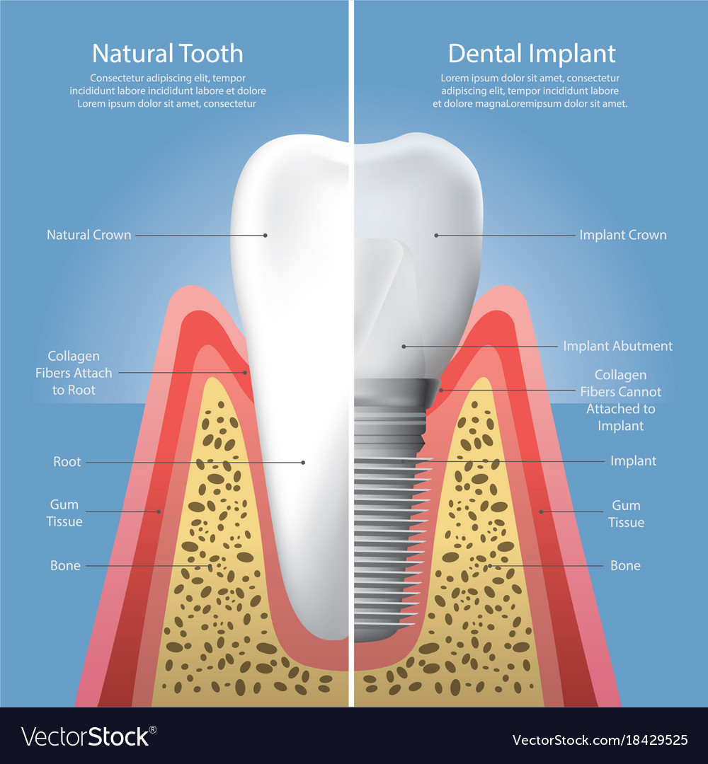Human teeth and dental implant Royalty Free Vector Image
