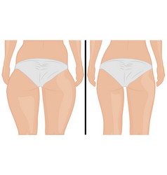 Fat thigs correction liposuction before after vector