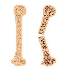 Healthy bone and broken bone with osteoporosis vector