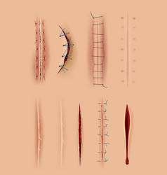 realistic scars medical surgical sutures wounds vector image