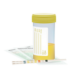 Urine test strip with the plastic jar of urine and vector