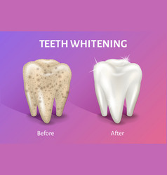 teeth whitening in realistic 3d vector image