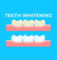 teeth whitening or bleaching vector image