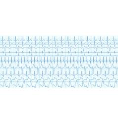 Cardiograms vector image