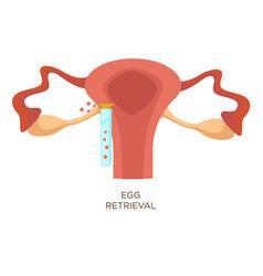 egg retrieval stage in vitro fertilization vector image