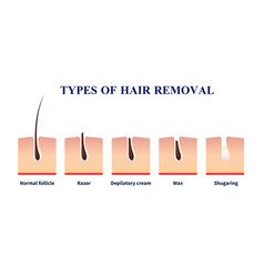Types of hair removal vector