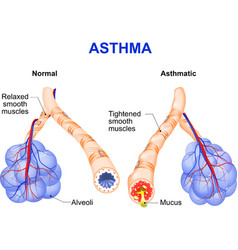 Asthma vector image vector image