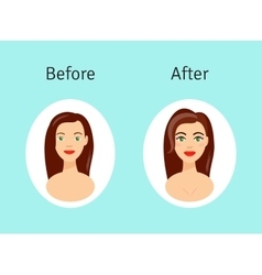 Plastic surgery before and after vector