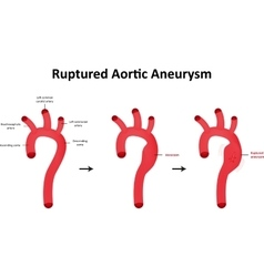 Ruptured Aortic Aneurysm vector image