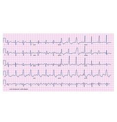 cardio diagram vector image