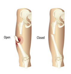 femur fractures vector image