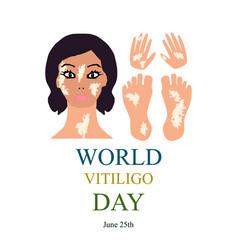 World vitiligo day infographics vector